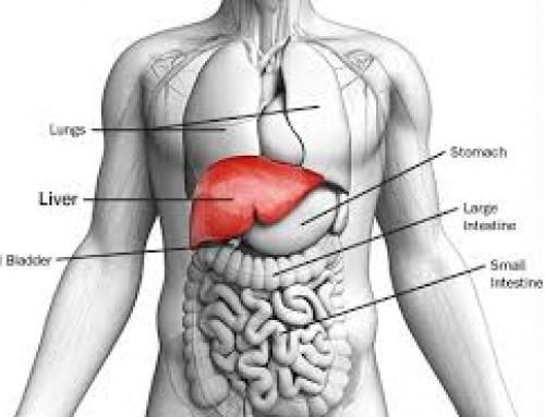 Hepatitis A Outbreaks