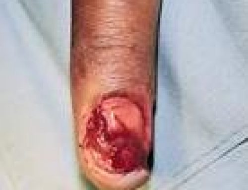 Injuries To The Nail Bed
